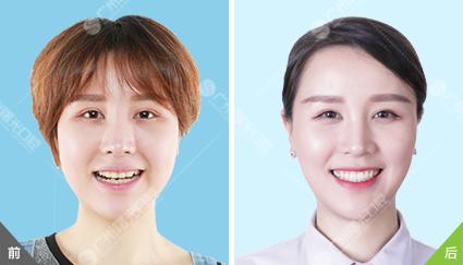 曙光员工隐形牙齿矫正前后对比(组图)